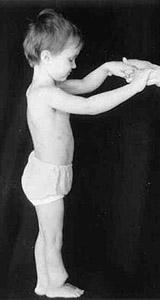 Ложный сустав у детей фото